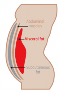 fat background for non invasive liposuction