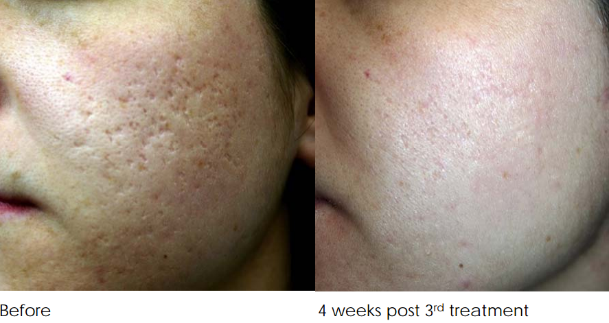 Acne Scar Removal Treatment Melbourne Before And After 3 Treatments Png Feel Good Laser And Skin