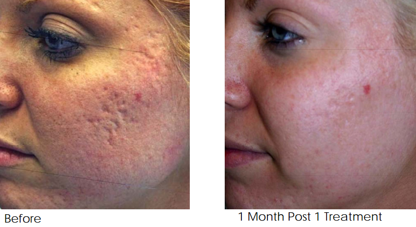 Acne Scar Removal Treatment Melbourne After 1 Treatment Png Feel Good Laser And Skin