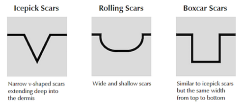 acne-scar-types