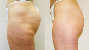 VelaShape III Melbourne - dimpled fat removal