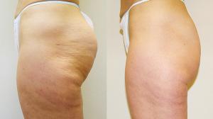VelaShape III Melbourne - dimpled fat removal