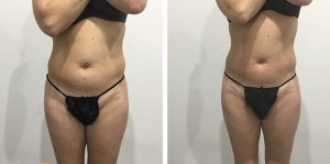Non-Surgical Liposuction