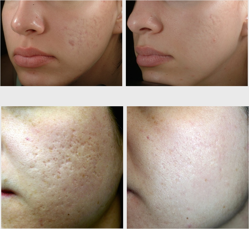 Looking For An Acne Scar Treatment That Actually Works?