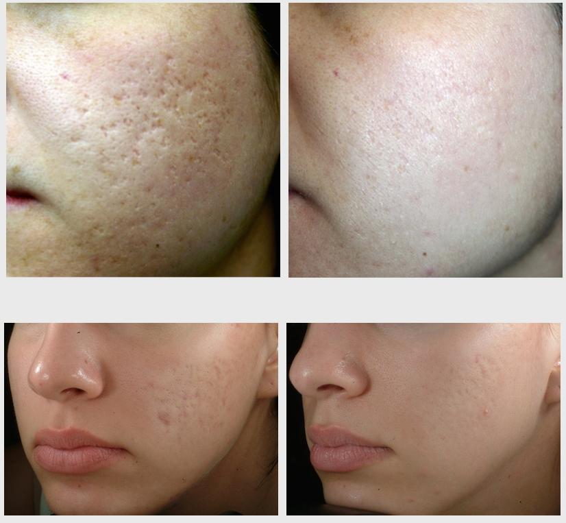 Effective Acne Scar Treatment For Brides To Be Feel Good Laser And Skin