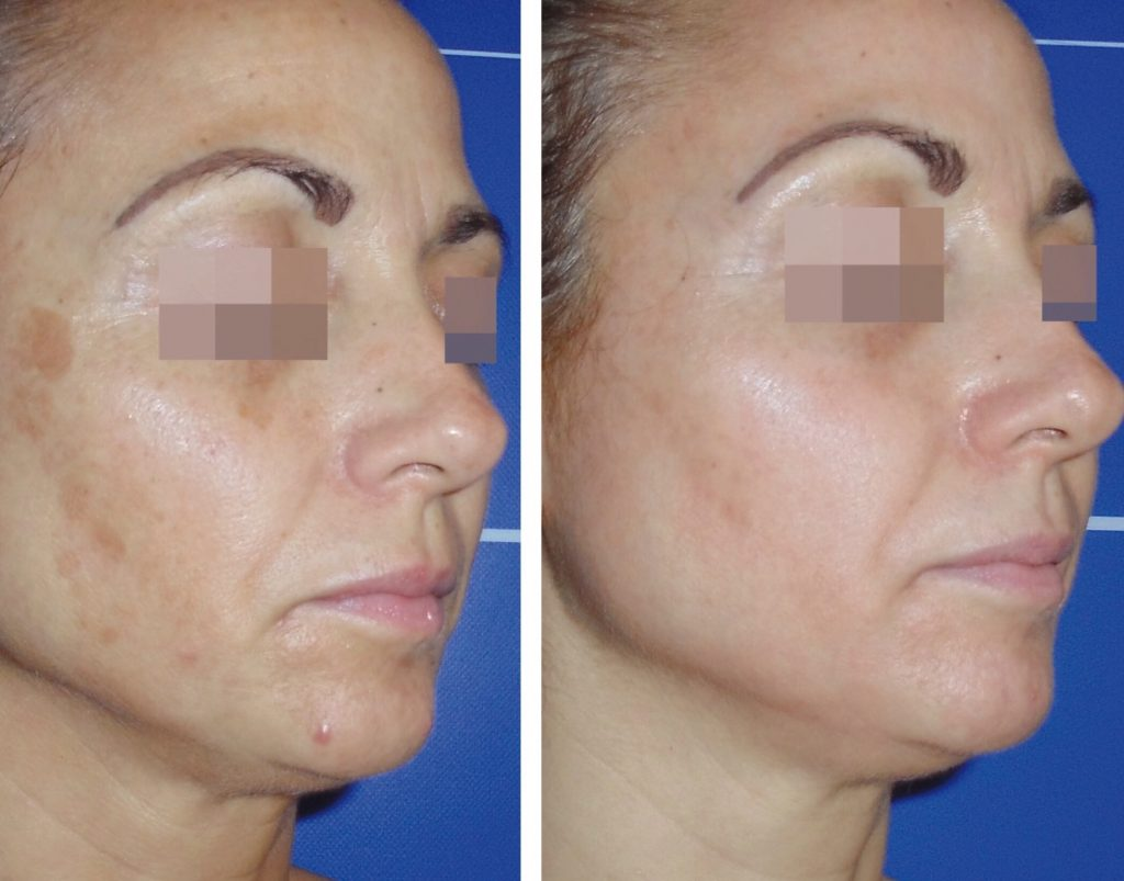 Pigmentation Treatment- Cosmelan Before & After